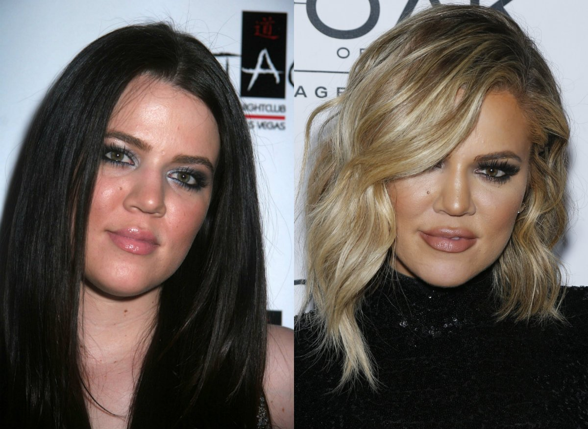 10 Celebrities Before and After Plastic Surgery 8