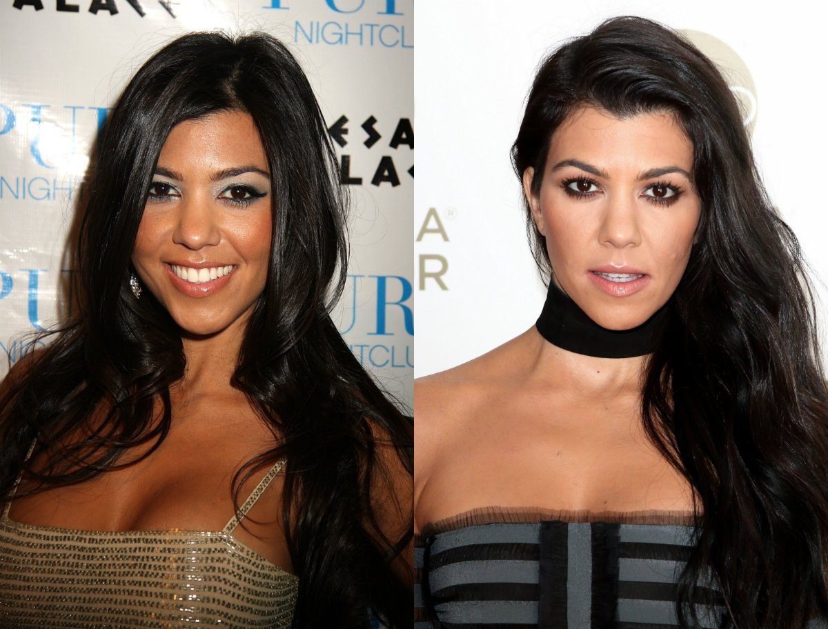 10 Celebrities Before and After Plastic Surgery 5