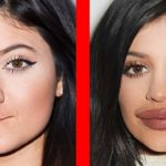 10 Celebrities Before and After Plastic Surgery 14