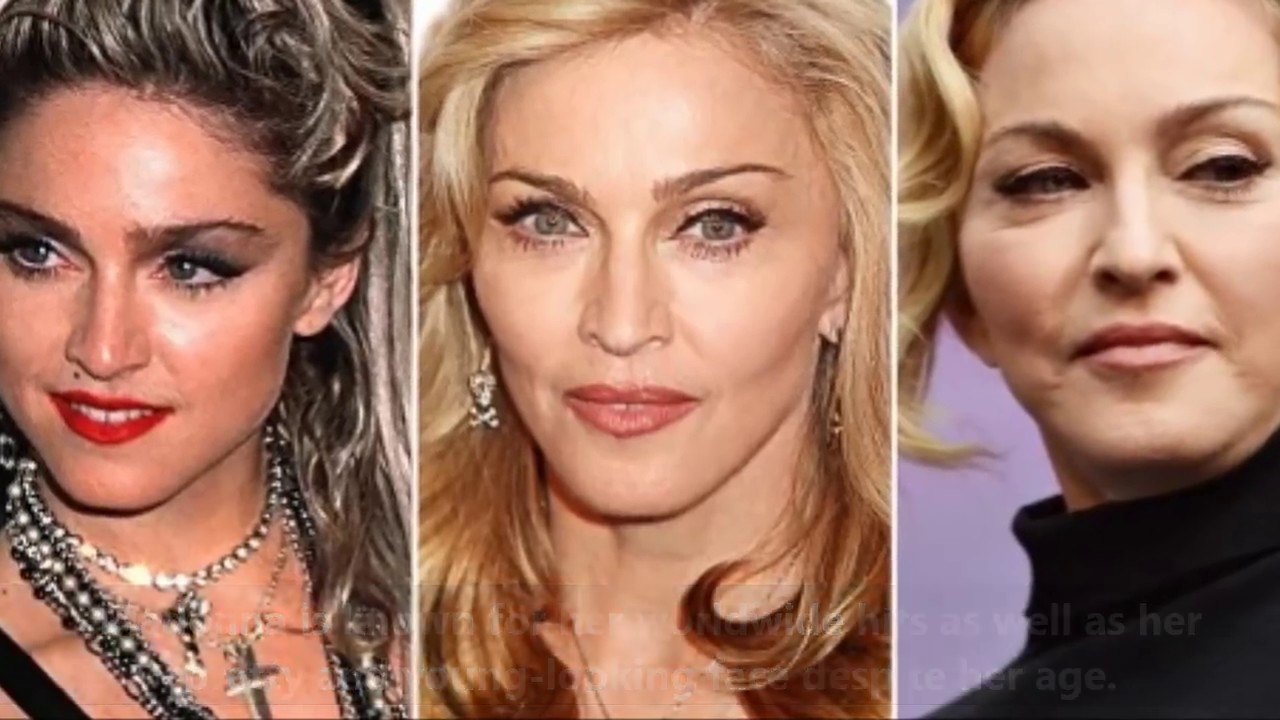 10 Celebrities Before and After Plastic Surgery 1