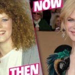 Nicole Kidman Plastic Surgery Before and After 7