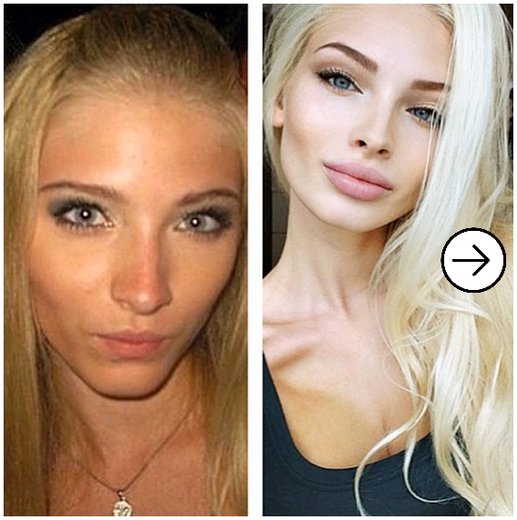 20 Before and After images of Girls with Pimples 1