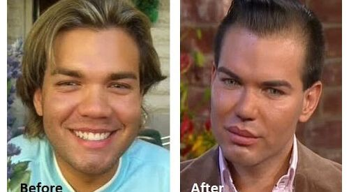 """4 people that changed their lives in """"Botched"""" Plastic Surgery 2"""