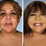 """4 people that changed their lives in """"Botched"""" Plastic Surgery 14"""
