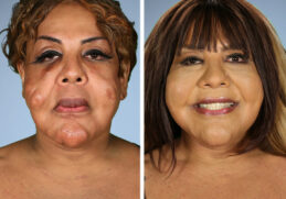 "4 people that changed their lives in ""Botched"" Plastic Surgery 24"