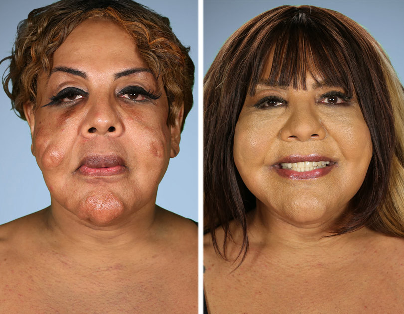 "4 people that changed their lives in ""Botched"" Plastic Surgery 16"