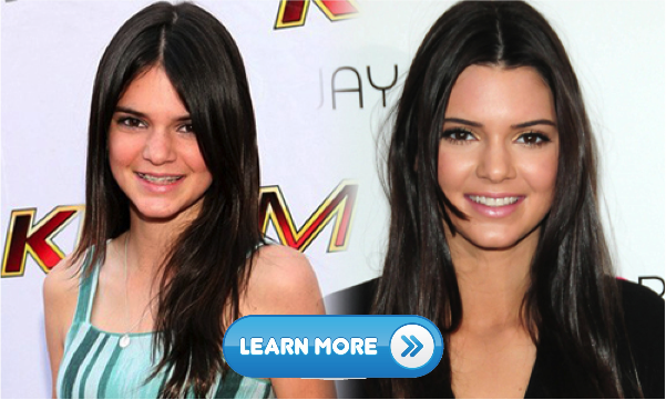 10 Celebrities without makeup and diving into aging pool 1