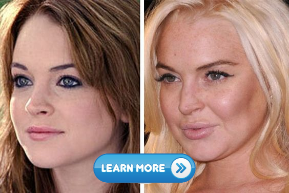 10 Celebrities without makeup and diving into aging pool 2