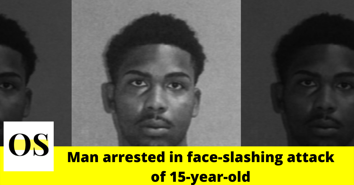 22-year-old man arrested in face-slashing attack of 15-year-old in Orange City 2