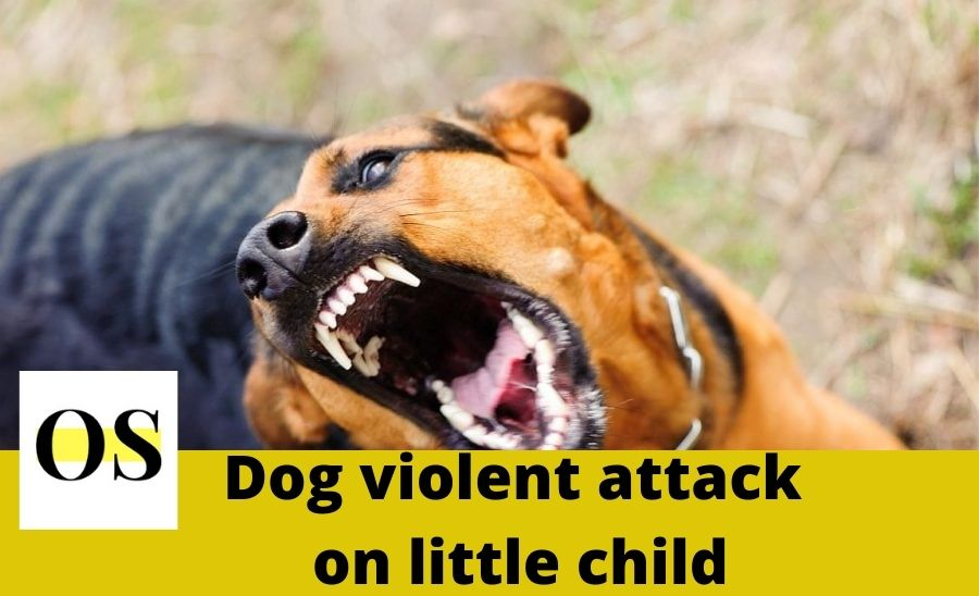 Why dog attacked aggressively towards child??? 6