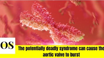 Turner syndrome, potentially deadly