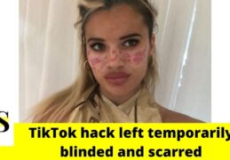21-year-old TV Star used a TikTok hack but was left temporarily blinded and scarred 4