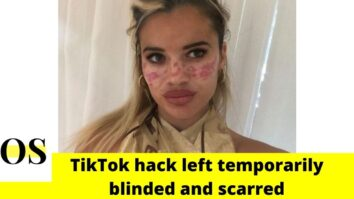 21-year-old TV Star used a TikTok hack but was left temporarily blinded and scarred 17